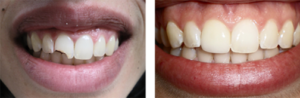 smile makeover - before/after