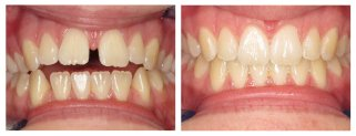 invisalign miami - before/after