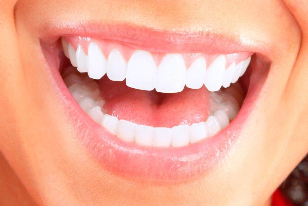 Dental health - Healthy teeth