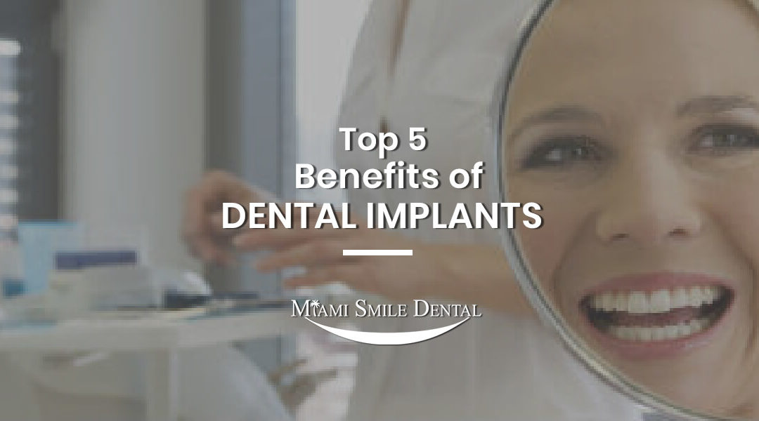 Top 5 Benefits of Dental Implants