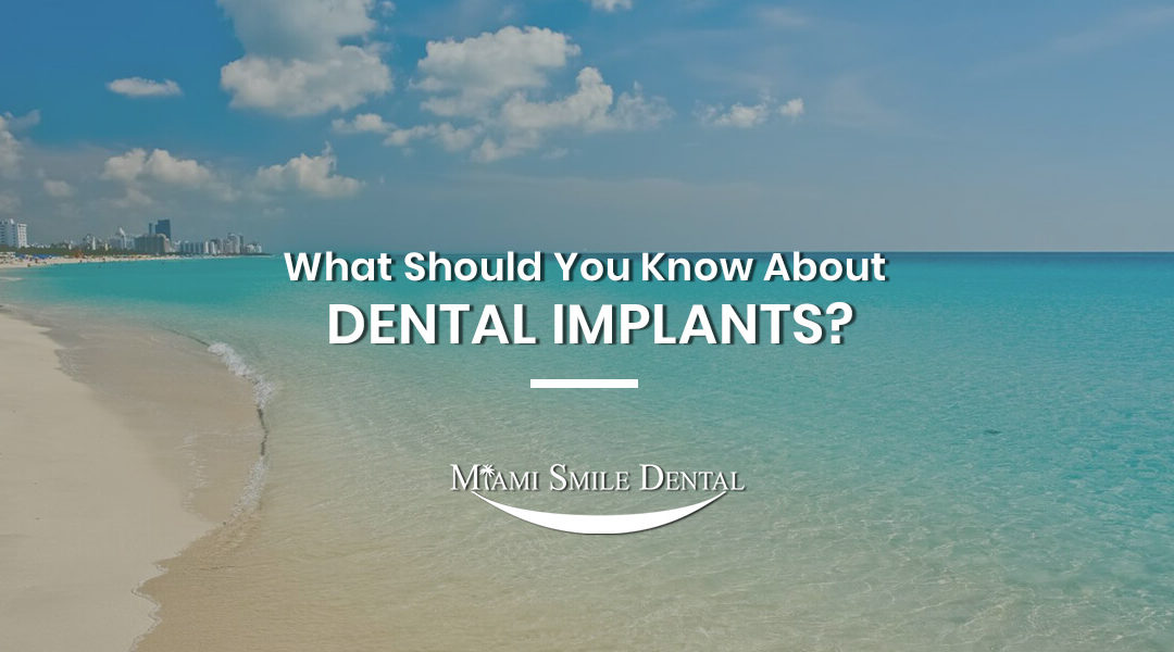 What Should You Know About Dental Implants