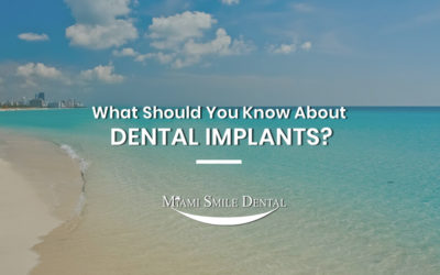 What Should You Know About Permanent Solution of Dental Implants?