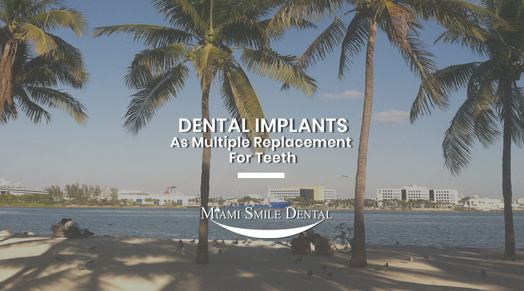 Dental Implants As Multiple Replacement For Teeth