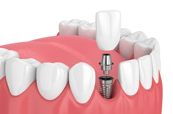 dental implants and implants
