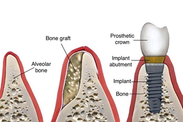 Bone augmentation