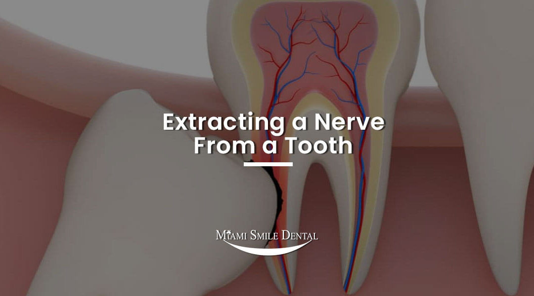 Extracting a Nerve From a Tooth